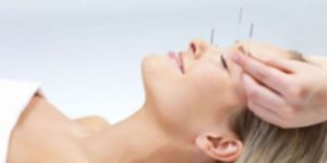 Kozmetik Akupunktur