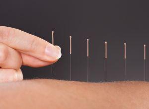 akupunktur ile kilo verme